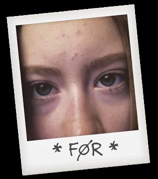 rensning af ansigt